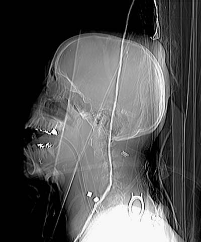 xray of head and neck